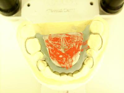 deckbiss mit zahnschiene behandeln